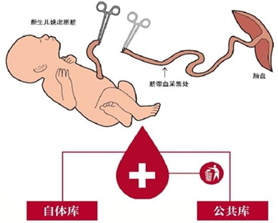储存脐血 可治疗白血病等80多种疾病