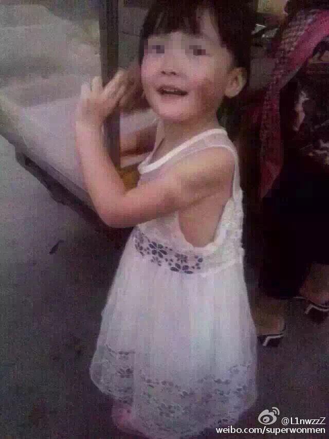 4岁女童遭父亲虐待烫伤 男子已被拘留图片